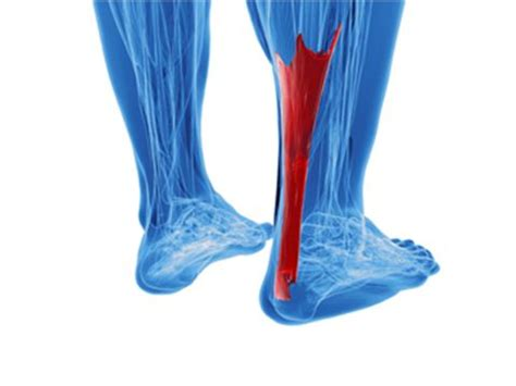 Achilles tendon research papers