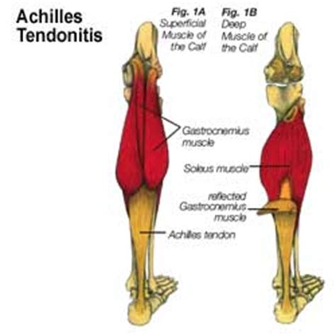 ACHILLES TENDON - Essays and Papers Online
